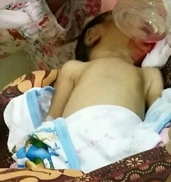Bé trai 10 ngày tuổi đã qua đời vì ăn dặm quá sớm (Ảnh: FB Lia).