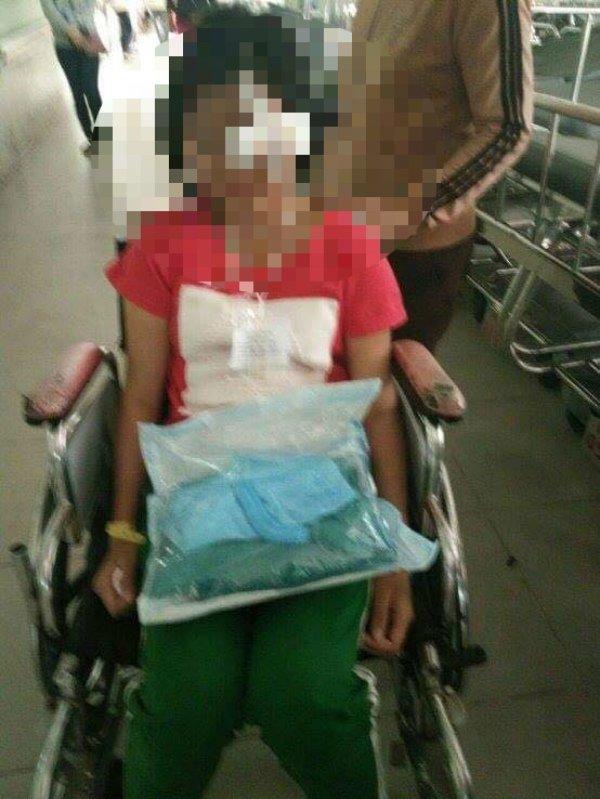 Nữ sinh V bị đánh hỏng mắt phải nhập viện cấp cứu.