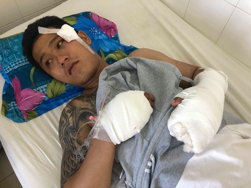 Anh Linh đang được điều trị tại Bệnh viên Đa khoa tỉnh Khánh Hòa