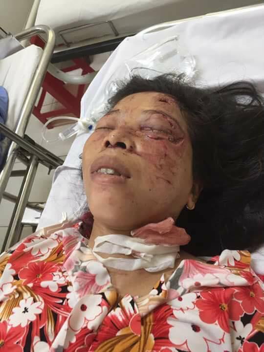 Chị Hòa bị tai nạn nguy kịch khi đang đi chặt mía thuê - Ảnh: Hoàng Cát
