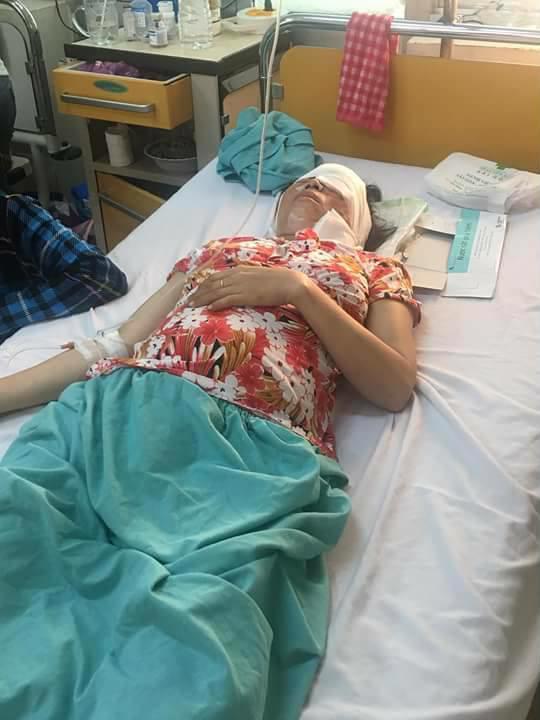 Chị Hòa bị hỏng mắt trái, thai nhi có nguy cơ dị tật đến 80% - Ảnh: Hoàng Cát
