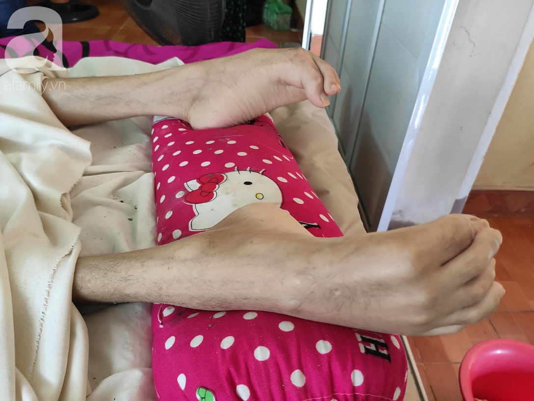 Đôi chân tong teo của anh Bình.