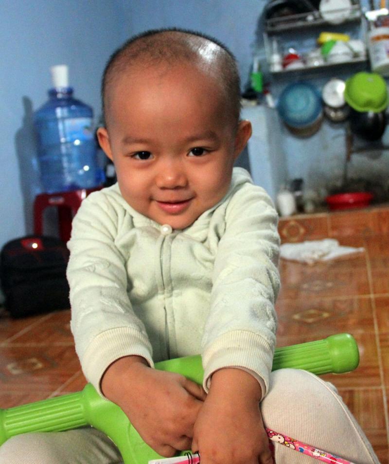 Bé Trần Ngọc Hải Yến đang mang trong mình bệnh ung thư buồng trứng