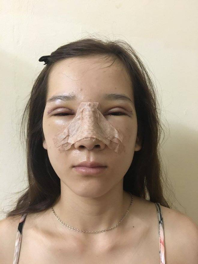 Hà cập nhật hình ảnh sau khi phẫu thuật hàng ngày trên trang cá nhân. Cô bạn đã cắt mí mắt, nâng mũi.