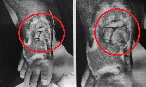 Bàn chân bệnh nhân mất da, mô mềm, gân duỗi và hoại tử xương.