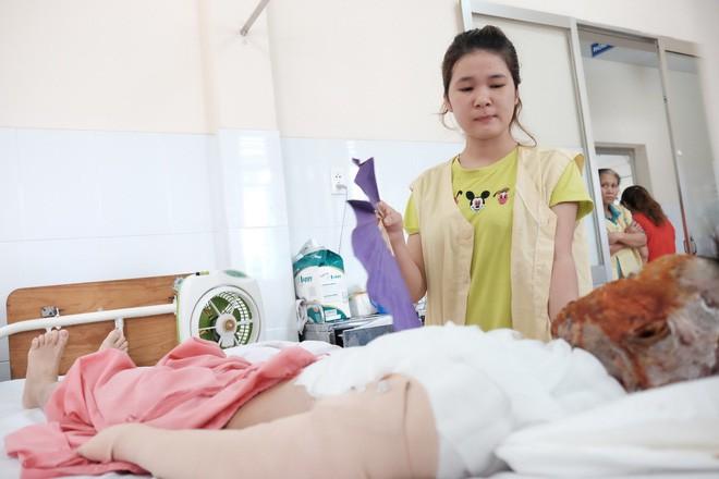 Suốt những ngày Đẹp nằm viện, một tay chị gái tên Xinh chăm sóc.