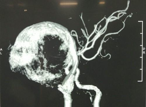 Hình ảnh túi phình động mạch cảnh trong khổng lồ của trẻ. Ảnh: Bệnh viện cung cấp.