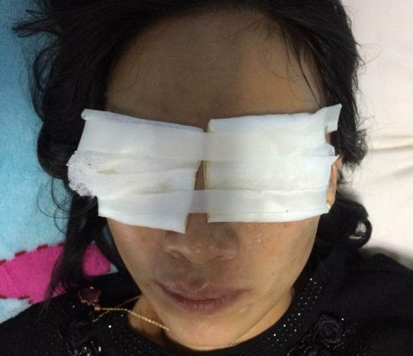 Nạn nhân bỏng 2 mắt do bị mẹ chồng tạt axit. Ảnh: CTV.