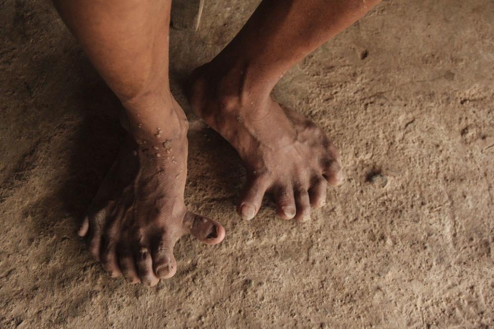 Đôi bàn chân kì lạ có 7 ngón của 2 anh em người Mày.