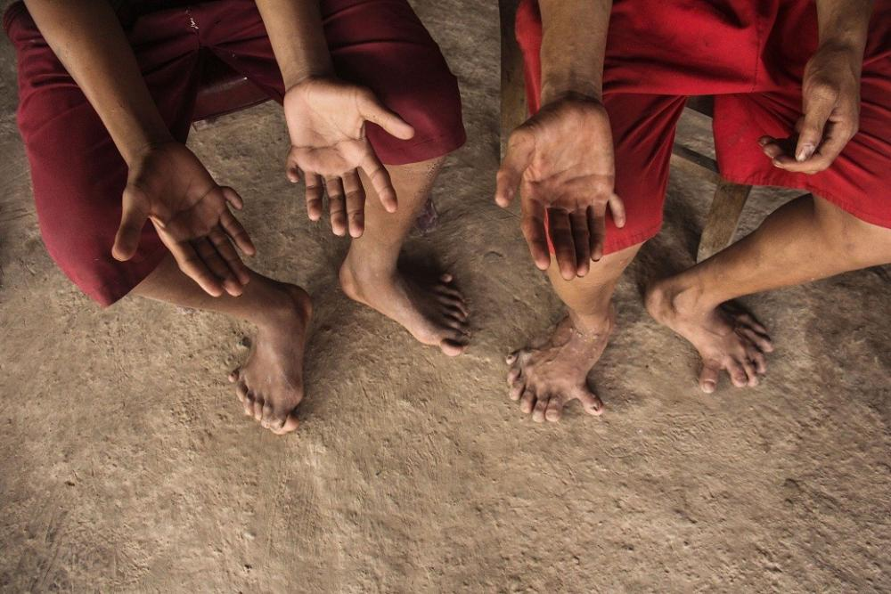 Cả chân và tay, mỗi người đều có 26 ngón tất cả.