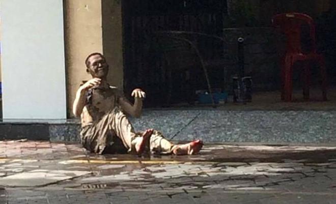 Bác sĩ tiên lượng xấu về tình trạng sức khỏe của nạn nhân Sơn. Ảnh: CTV.