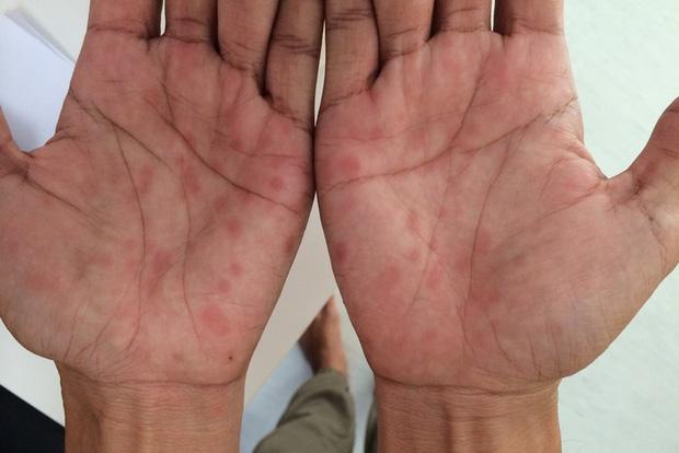 Nốt vẩy đỏ ở lòng bàn tay - một trong những dấu hiệu của bệnh giang mai.