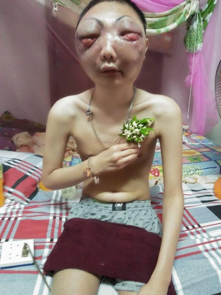 Nam thanh niên bị ung thư biến dạng khuôn mặt