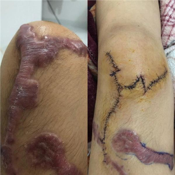 Chân của cô cũng bị axit h.ủy ho.ại