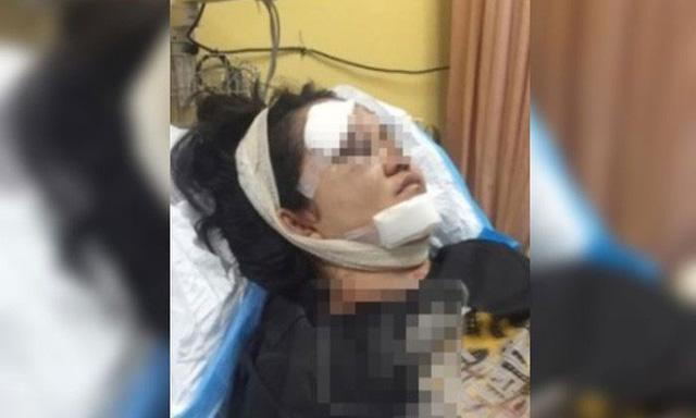 Khuôn mặt nạn nhân bị th ương tổn nặng sau khi bị chính bố đẻ n.ện bú.a vào mặt