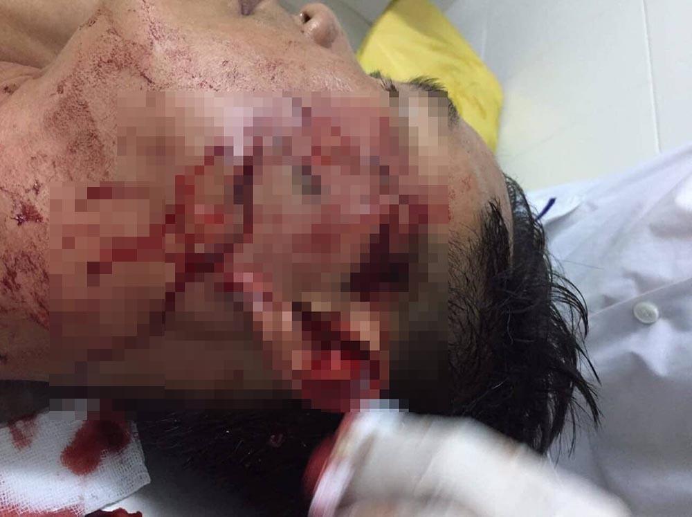 Đại uý Nhiều bị thương tích được đưa vào bệnh viện điều trị
