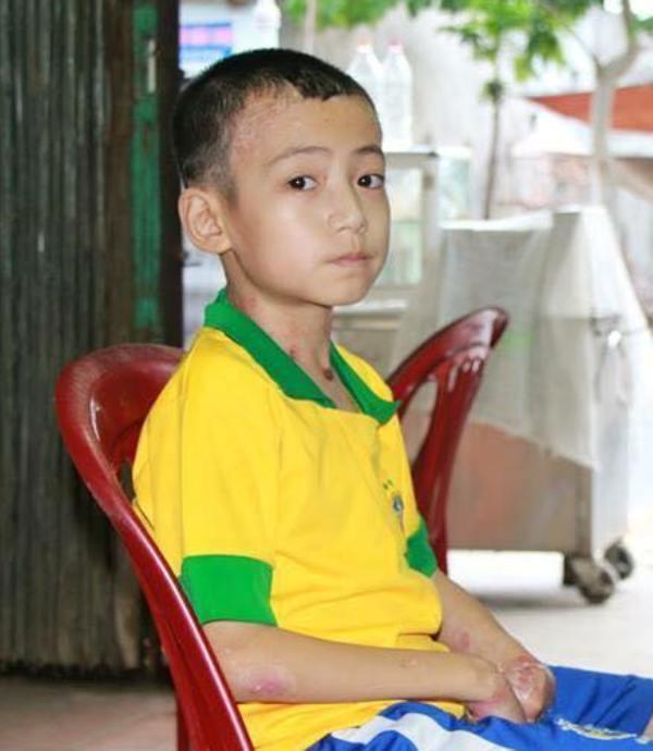 Tuy mắc bệnh hiếm nhưng Nguyễn Hữu Việt Hoàng vẫn vươn lên học giỏi. Ảnh của CLB TYTH