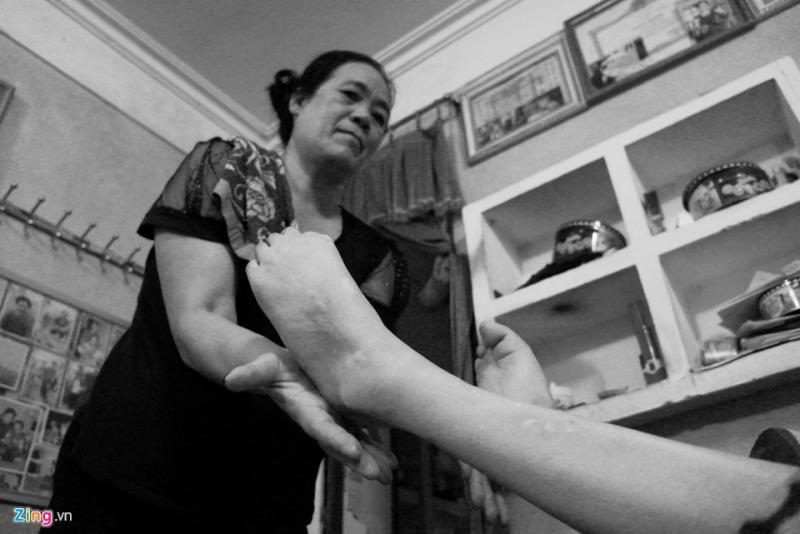 Không chỉ là người vợ, người mẹ đảm đang, tảo tần, bà Hạnh còn là một điều dưỡng viên tại nhà của chồng - người thương binh nặng, mất 95% sức khỏe.