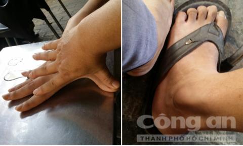Gang tay của Tú hơn 30cm, bàn chân dài, to gần gấp đôi người bình thường