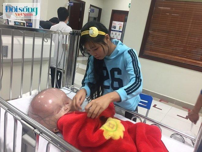 Bé trai mắc bệnh đầu nặng 15kg ở Thanh Hóa, người mẹ lên tiếng tiết lộ lý do không đưa con sang Singapore