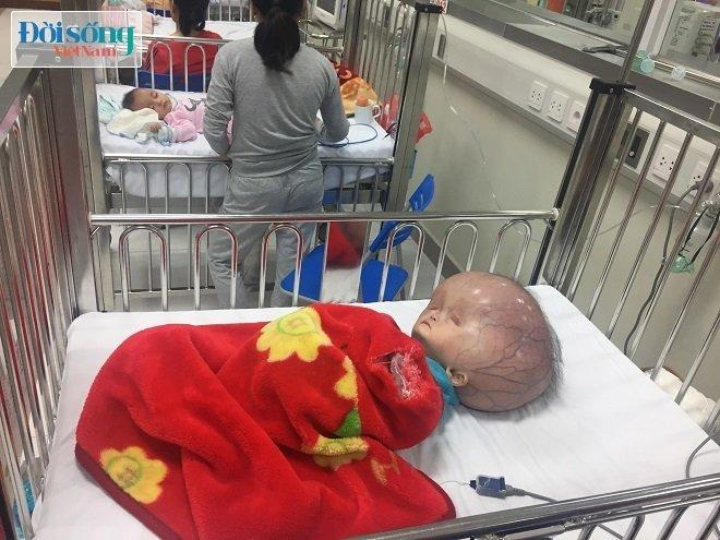 Bé trai mắc bệnh não úng thủy, đầu nặng 15 kg ở Thanh Hóa gia đình không cho bé đi Singapore chữa bệnh