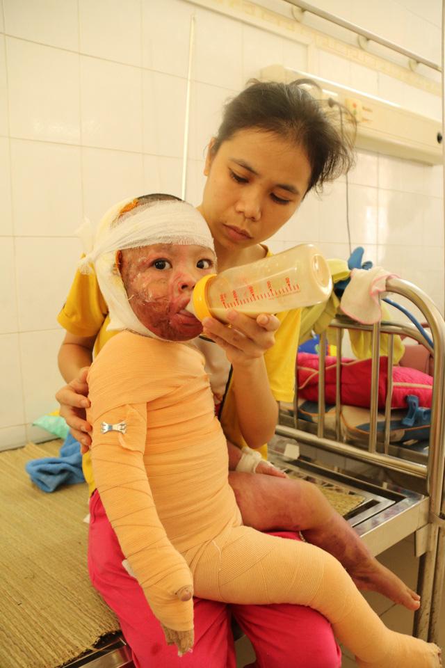 Bé Bảo vẫn cần phải điều trị thêm. ảnh Phương Thuận