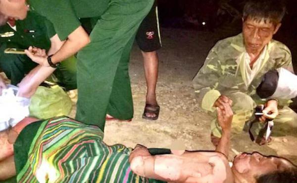 Người chồng nắm chặt tay, động viện vợ khi các chiến sỹ Bộ đội Biên phòng đang cứu chữa vết bỏng.