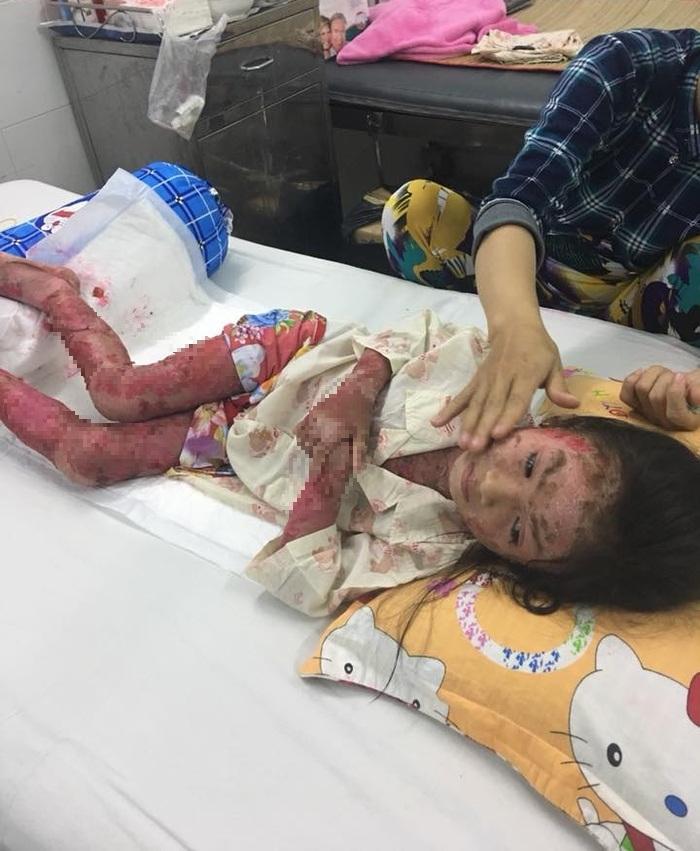 Cô bé 7 tuổi sống trong tình trạng đau đớn, ngứa rát đã nhiều năm nay - Ảnh: Em Đẹp