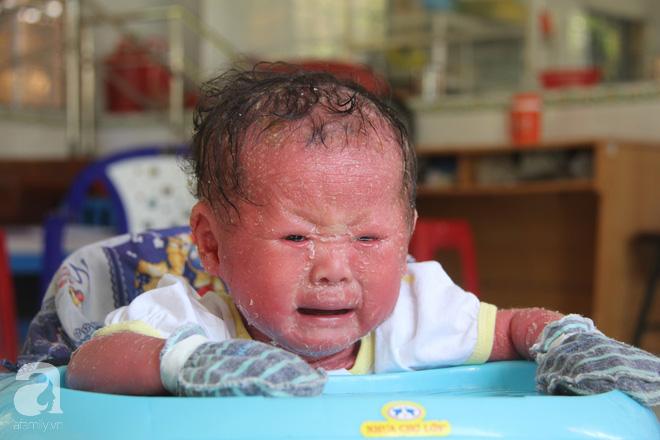 Vừa chào đời bé Bích đã mắc phải căn bệnh lạ khi da bé bị bong tróc, thay liên tục như loài trăn.