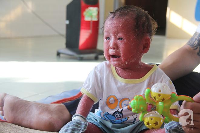 Mỗi ngày trôi qua, bé Bích phải chịu sự giày vò bởi vết ngứa, đau đớn khắp người.