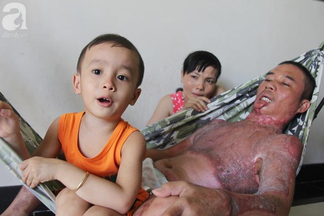 Sau khi chúng tôi đăng tải về hoàn cảnh gia đình anh Mỵ, đã có hơn 140 hỗ trợ gia đình anh.