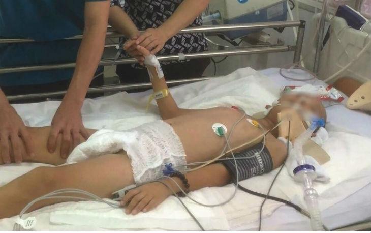 Do tủy sống bị tổn thương dẫn đến bệnh nhi bị liệt hai tay, phổi mất chức năng hô hấp nên phải thở máy. (Ảnh: Vietnamnet).