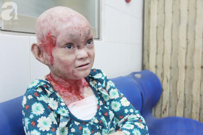 Cơ thể bị lở loét khắp người khiến Dương vô cùng đau đớn.