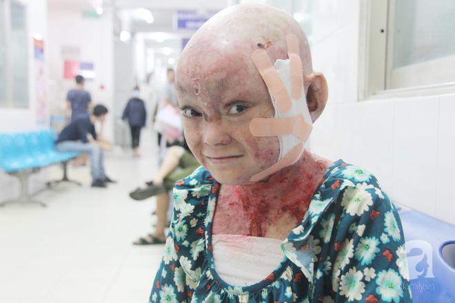 Hi vọng có một phép màu sẽ đến với gia đình em, giúp Dương được chữa bệnh để thoát khỏi nỗi đau đớn này.