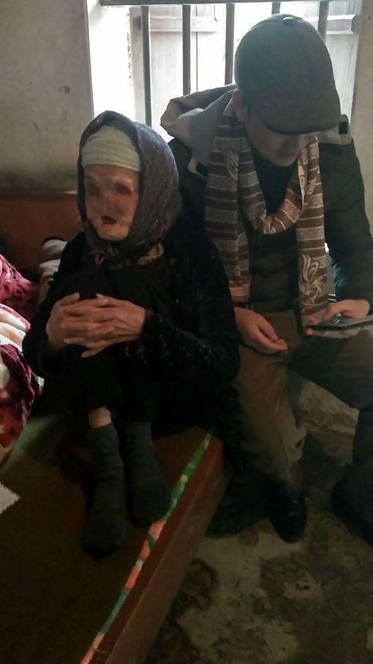 Cụ bà Phạm Thị Sen, 82 tuổi bị bệnh cam phá hủy khuôn mặt, hiện phải sống khốn khó trong căn nhà lụp xụp.