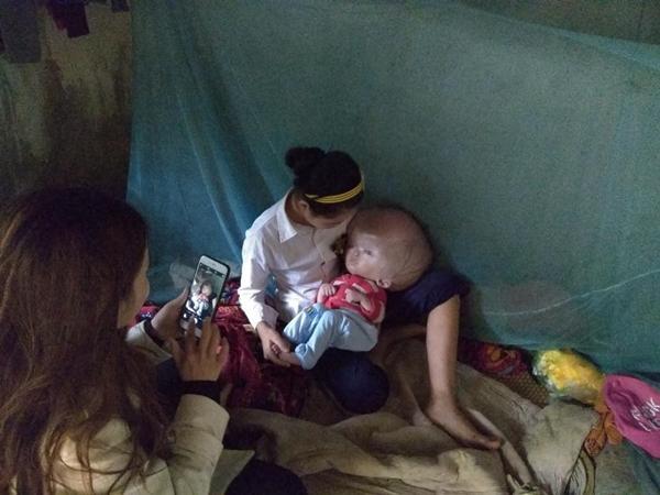 Cậu bé Bùi Trung Đoàn bị chứng não úng thủy phải gánh chịu nỗi đau đớn khi chỉ mới 18 tháng tuổi.
