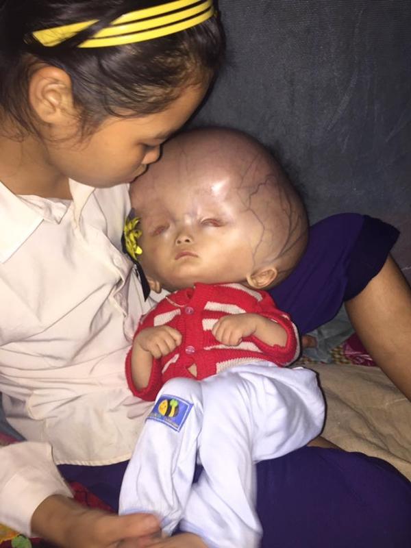 Phần đầu bé đã ngày càng lớn dần, nổi đầy tơ máu khiến ai nhìn cũng đau xót nhưng lại không có điều kiện được điều trị tại bệnh viện.