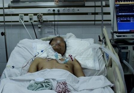 Bệnh nhân vẫn trong tình trạng nguy kịch. Ảnh: Vân Sơn