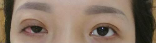 Sau khi phẫu thuật nhấn mí, Sương bị liệt cơ mí mắt vĩnh viễn dẫn đến cả đời không thể nhắm mắt