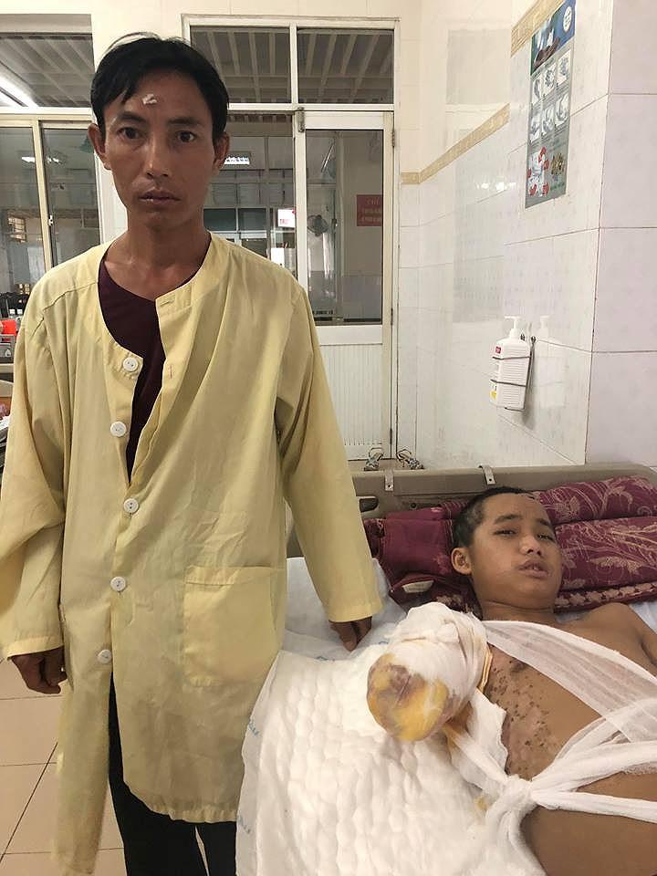 A Pao và chú tại Bệnh Viện Bỏng Trung ương